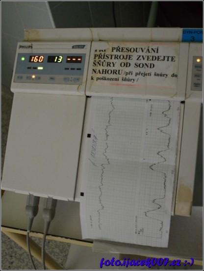 Přístroj na sledování dýchání nenarozeného dítěte.