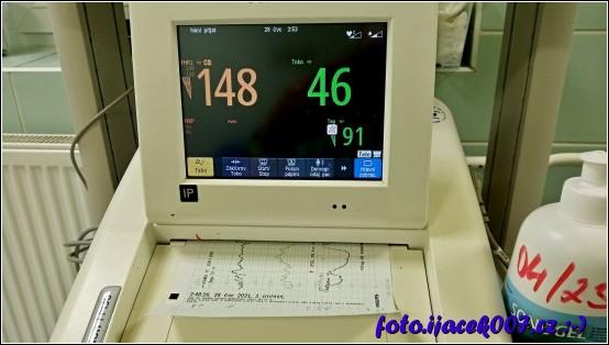 přístroj na monitoring plodu takzvaných ozev.